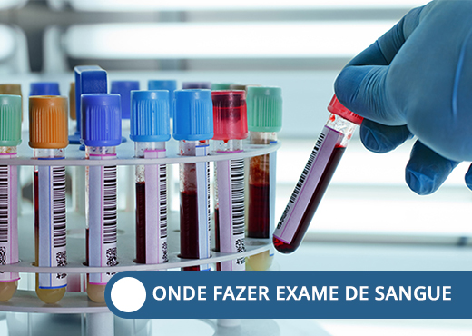 onde fazer exame de sangue 1
